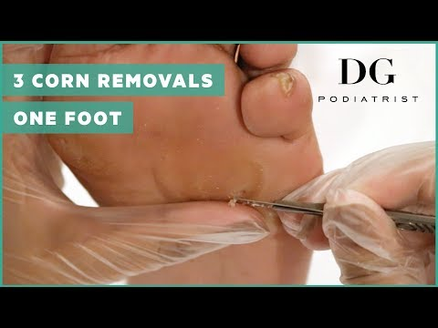 Corn removal with callus: Three corns on one foot!