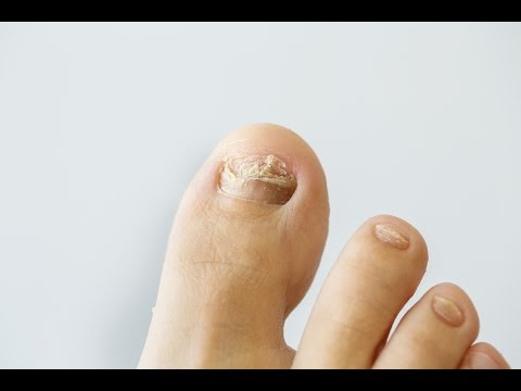Nail fungus | American Academy of Dermatology