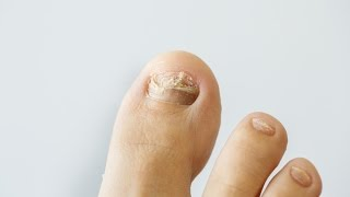 How to prevent aฑd treat nail fungus