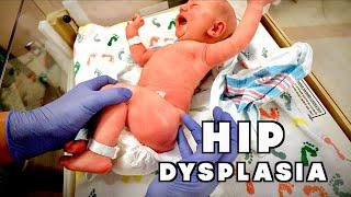 NEWBORN WITH CONGENITAL HIP DYSPLASIA (Hospital Visit)   Dr. Paul