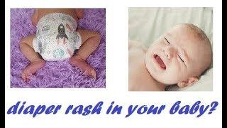Diaper rash or diaper dermatitis