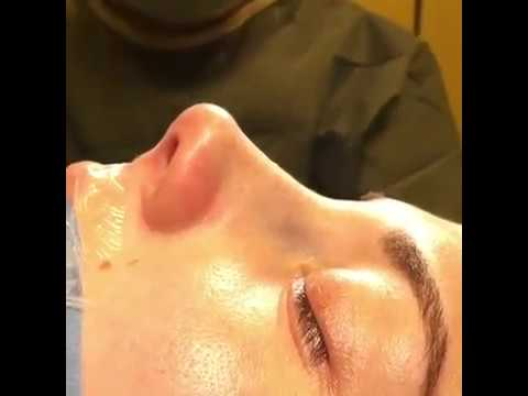 Closed & Atraumatic Technique | Revision Rhinoplasty