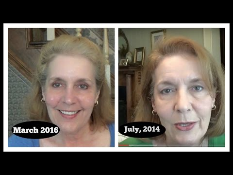 Anti-Aging Skincare~ Before & After ~ Sharing My Thoughts
