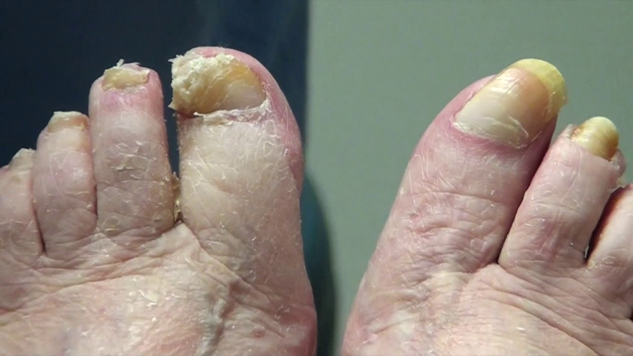 This patient takes her own video - long toenail cutting - YouTube