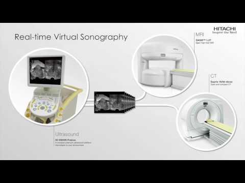 Hitachi RVS Technology MRI | US Fusion in prostate cancer diagnosis
