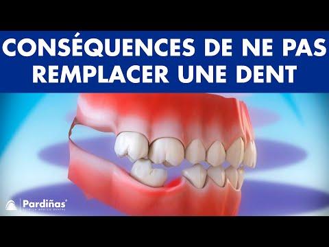 Conséquences de ne pas remplacer une dent manquante ©