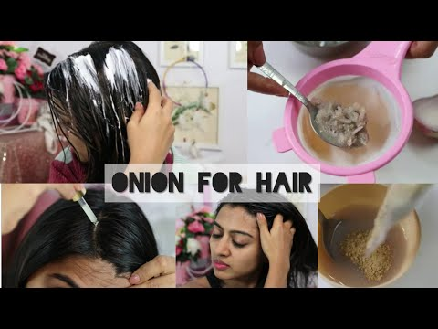 5 Ways to Use Onion for Hair Growth - DIYs , Hacks & Products | Hair loss | SuperWowStyle Prachi
