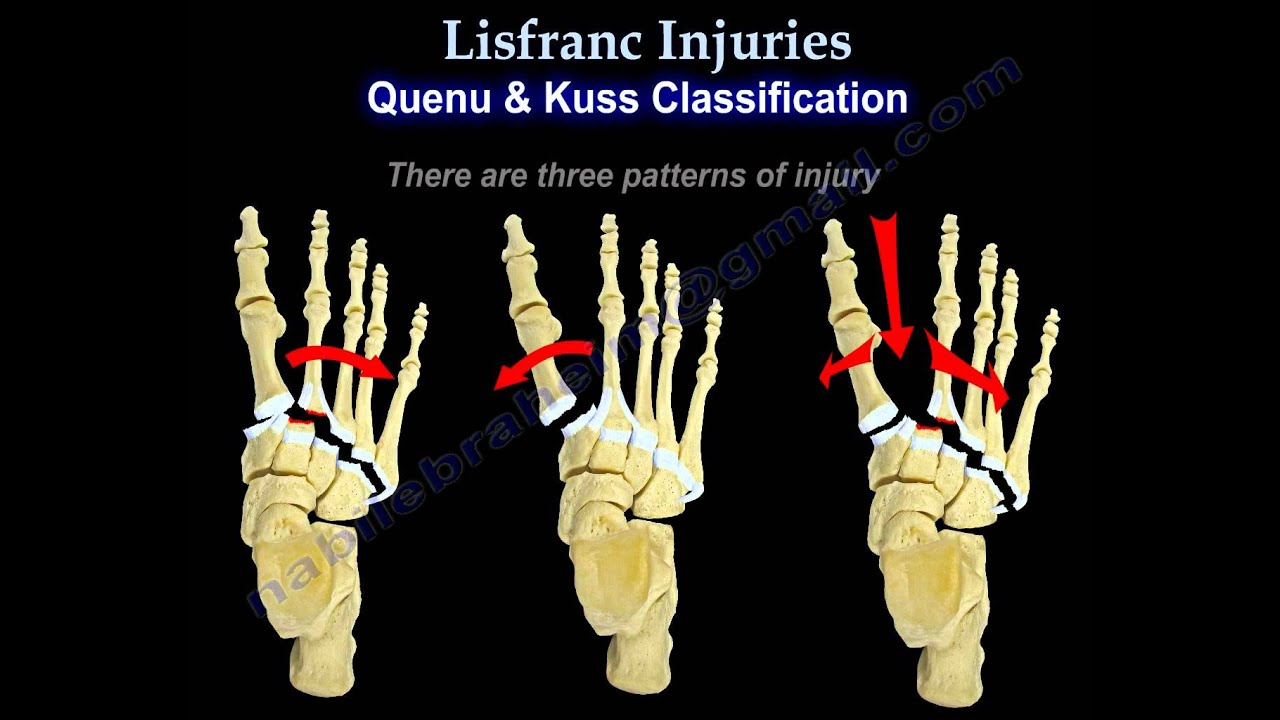 Lisfranc Injuries - Everything You Need To Know - Dr. Nabil Ebraheim ...