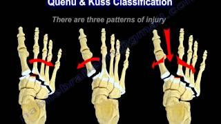 Lisfranc Injuries - Everything You Need To Know - Dr. Nabil Ebraheim