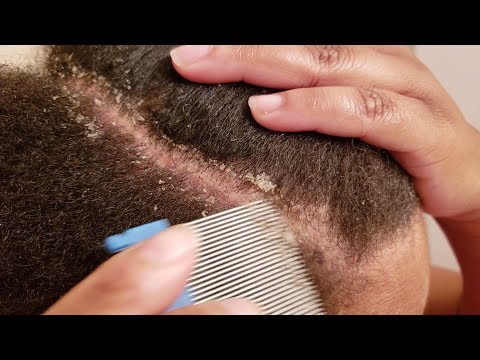 Using Lice Comb To Remove Dandruff Flakes Dandruff Scratching