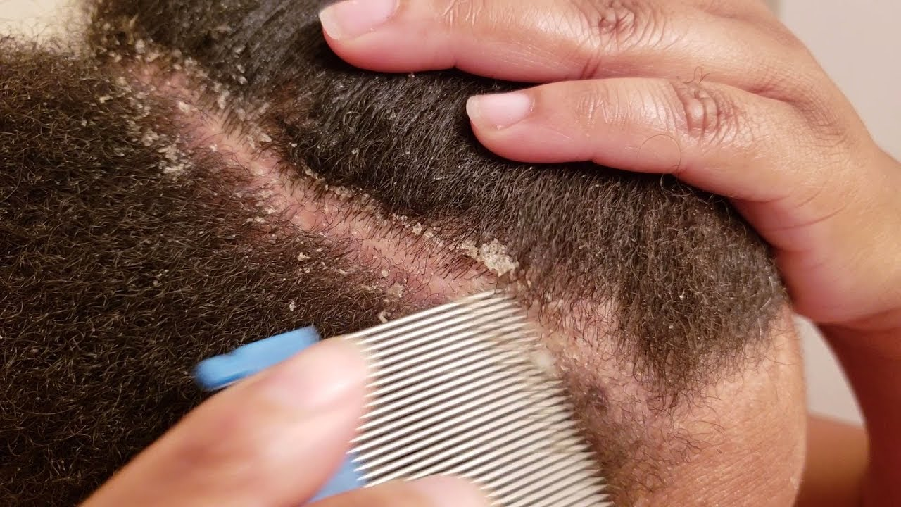 dandruff removal with lice comb)