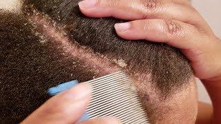Using Lice Comb To Remove Dandruff Flakes Dandruff Scratching