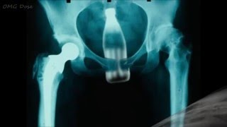 Top 20 Most Weird Objects Found In Human Rectum X-Ray