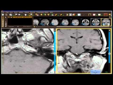 Pomeranz Mentor Series Neuro Case Review Posterior Fossa Mentor thumbnail