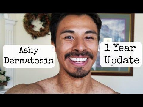 Ashy Dermatosis 1year Update