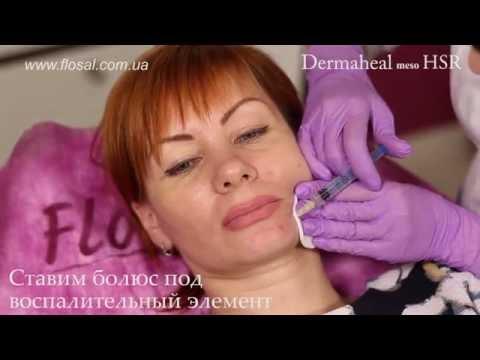 DERMAHEAL meso HSR — простой способ лечения единичных воспалительных элементов [ FloSal ]