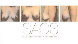 breast augmentation before and after Thumbnail