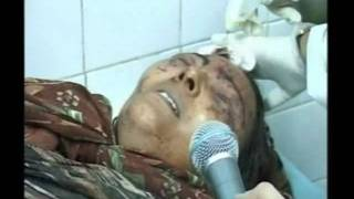 Footage of the dead bodies and injured children, men and , women 2.flv