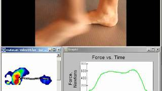 MatScan Barefoot Pressure Measurement and Gait Analysis for Physical Therapy in New York City (NYC)