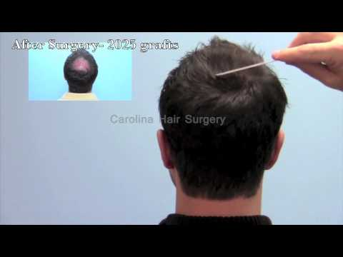 Excellent Hair Transplant of the Crown with FUE Hair Transplant
