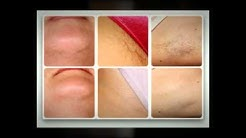 Laser Hair Removal - Deerfield Beach