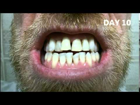 Crest Whitestrips Luxe Supreme Flexfit A Smoker S Journey
