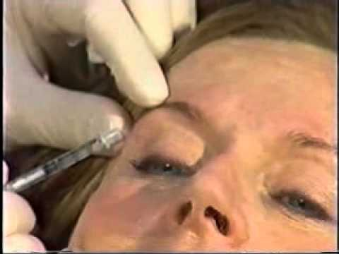 Botox for a Youthful Appearance: Cosmetic Plastic Surgery in Toronto