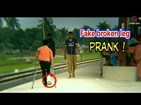 Fake Broken Leg Prank Prank In Public Youtube