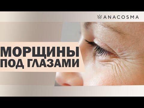 Как избавиться от морщин вокруг глаз в 30