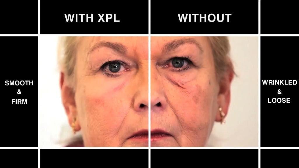 huid strakker maken gezicht