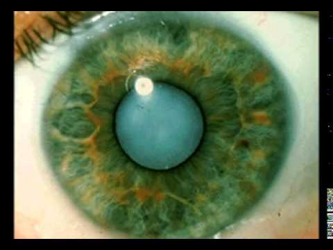 Осложнённая катаракта что это такое: диагностика, причины