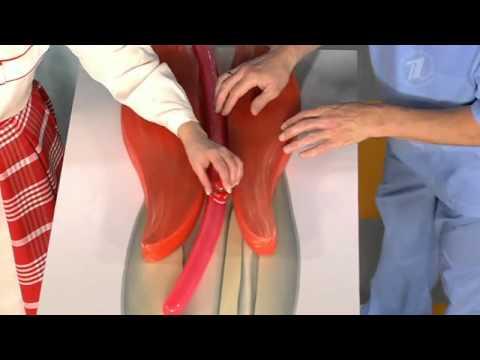 Сосуды болит нога