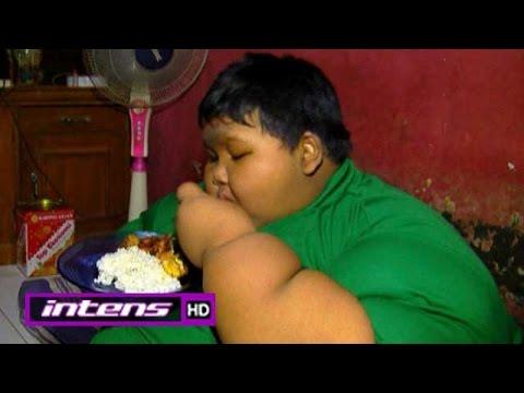 Bobot Badan Bocah Obesitas asal Karawang Turun dari 192 Menjadi 149