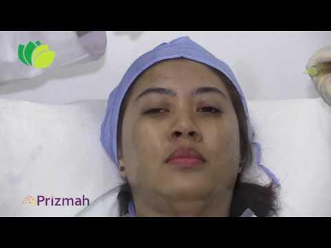 Dr Mazen Al Taher   PRP Procedure   The Doctors Medical Center   Abu Dhabi UAE