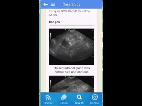 The SonoPath Mobile App Demo by Dr. Eric Lindquist