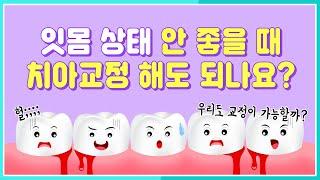 돌출입치아교정 중년치아교정은 잇몸상태에 따라 다르다?(…
