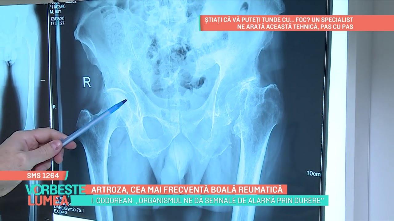 artroza reumatica