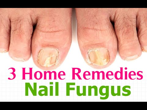3 Home Remedies For Nail Fungus - Toenail Fungus Treatment - YouTube