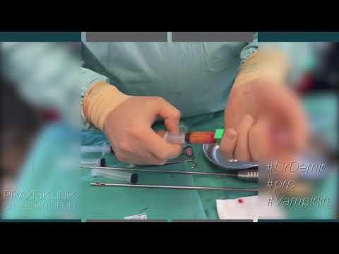 Vampirlift - Dr. Demir - Schönheitschirurg in Köln