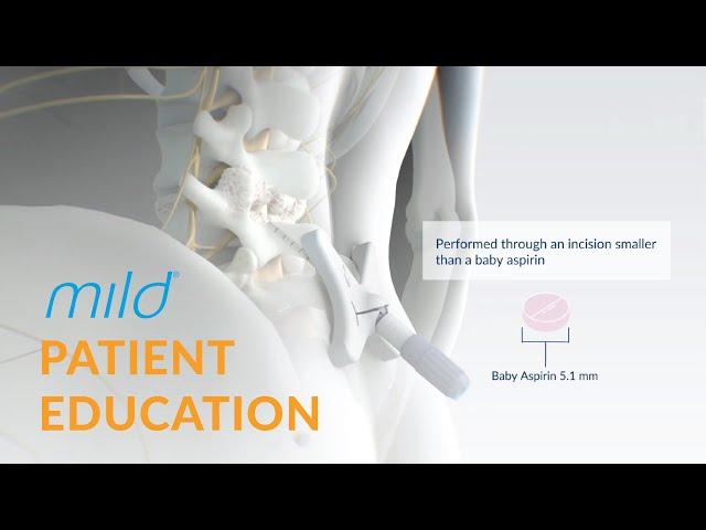Mild Procedure Patient Education | Minimally Invasive Stenosis Treatment