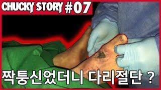 [ #07 ] 처키 : 짝퉁신었더니 다리절단? (Fea…