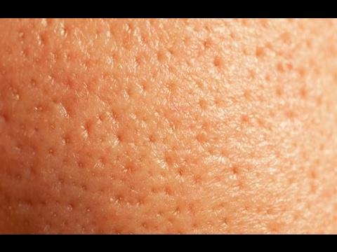 Shrink Large Pores_ (DIY Face & Nose to Reduce Pores)_ superwowstyle Prachi