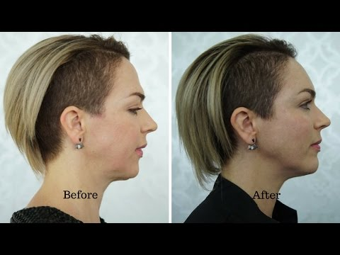 Dermal filler case study - chin, cheeks temples, and forehead by Dr