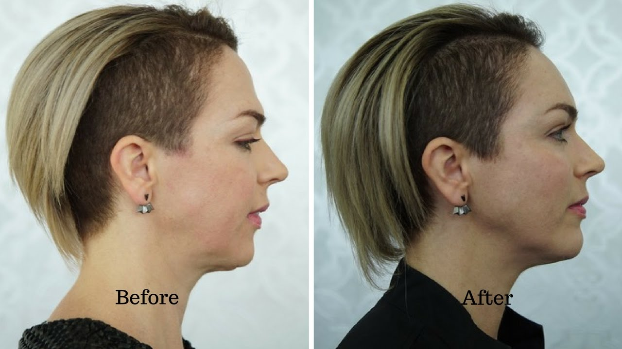 Dermal filler case study - chin, cheeks temples, and forehead by Dr  Sara  Mullen