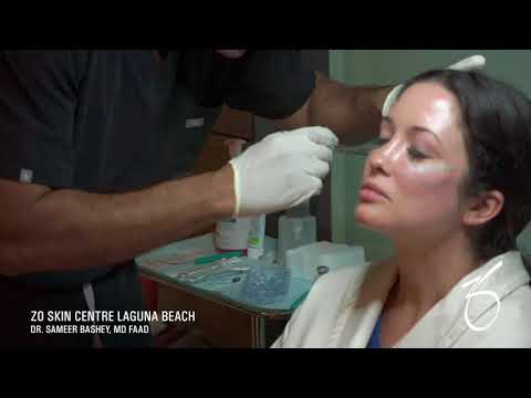 Voluma for Cheeks at ZO Skin Centre in Laguna Beach