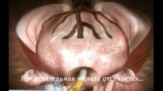 Лапароскопическое удаление простаты(Представлены возможности лапароскопии при удалении предстательной железы (простаты), 2016-01-12T19:38:40.000Z)