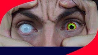 o que aconteceu com meu olho deu muito ruim