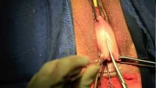 Repeat youtube video Vaginal hysterectomy + McCall culdoplasty + Anterior colporraphy PANAMA
