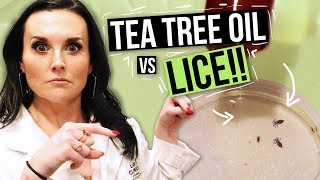 Removing LICE with TEA TREE OIL? - Watch this Before You Try!