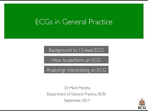 ECGs in General Practice